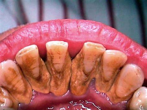 teeth disease gigi scaling cuci loose gum karang periodontal advanced dental pembersihan calculus perlu kenapa klinik heavy tartar dentist stain