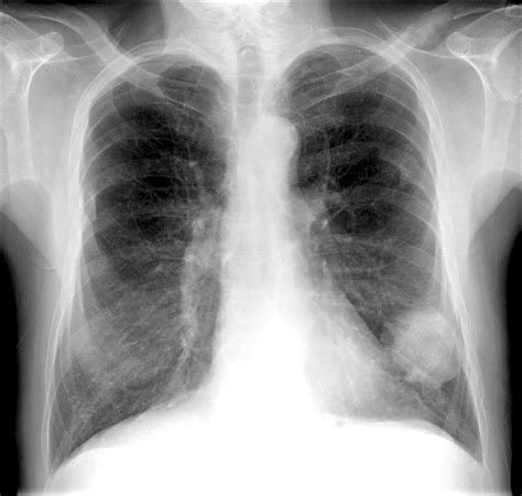 lung cancer ray imaging medical cane du ltd photograph disease 12th uploaded which
