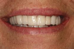 seacoast dental dentist  gloucester dentist