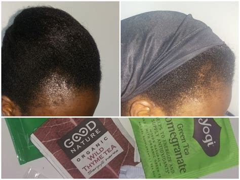 Video Alert Growing Back My Edges My Hair Tea Mix