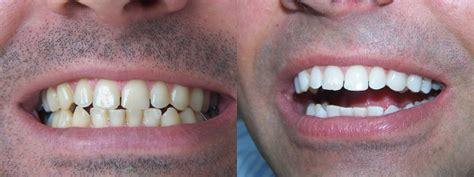 dentiste nogent sur marne blanchiment des dents