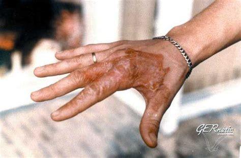 Burns And Burn Scar Treatment @padanjaly Http