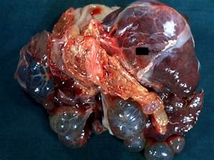 Hepatic Cysts