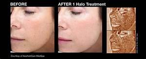 Fractional laser skin treatment