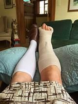 Can mri penetrate leg cast