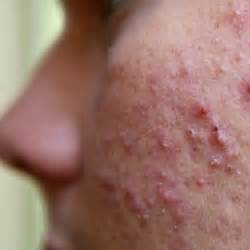 Herbal Remedies For Boils On Face Furuncle