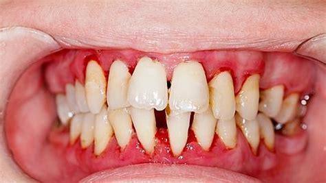 las personas  periodontitis tienen  riesgo mucho