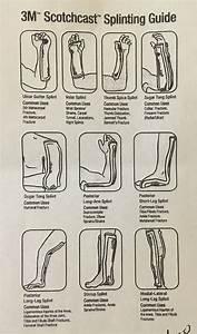 3m Splinting Guide