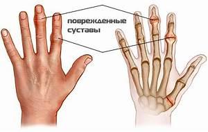 Лекарство от артроза и остеопороза