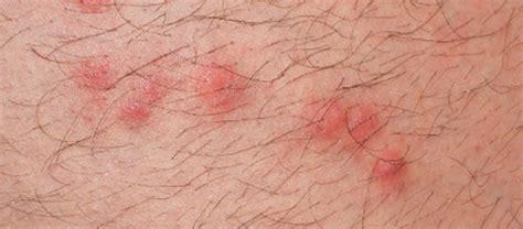 Flea Bites Images What Do Flea Bites Look Like Treatment For Humans Pets