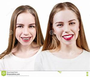 Perfect Teeth Before And After Braces Stock Image - Image ...