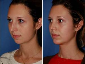 what is neck lift surgery