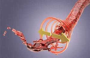 Лечение гипертонии препаратом лориста