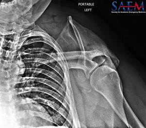 Saem Clinical Image Series  Left Shoulder Pain