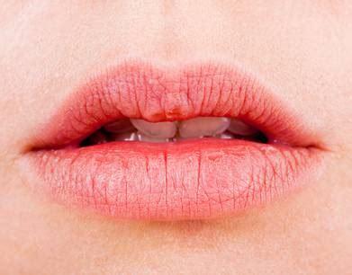 lippen größer machen trockene lippen lippenpflege selber machen