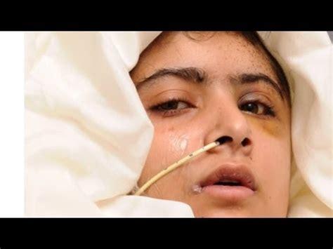 malala yousafzai    miraculous story
