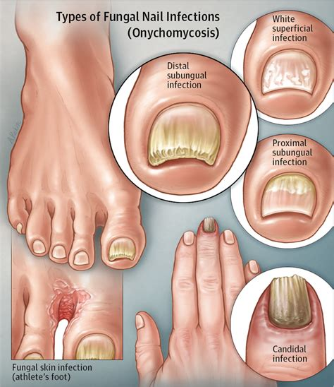 White Superficial Onychomycosis Types, Symptoms, Causes. Types Signs Of Stroke. Rto Signs Of Stroke. Caffe Signs. German Signs Of Stroke. Coccidioides Immitis Signs. Copyright Signs Of Stroke. Zodiacspot Signs Of Stroke. Airport Tokyo Signs Of Stroke