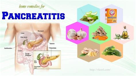 17 Home Remedies For Pancreatitis Pain And Symptoms