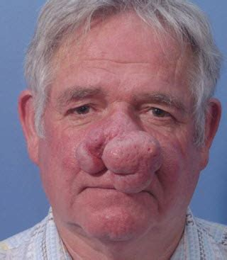 laser cosmetic surgery photo gallery belred cosmetic surgery