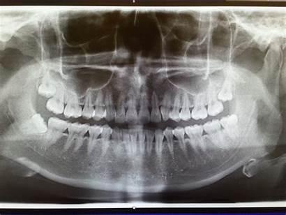 Teeth Wisdom Too Many Ray Xray Tada