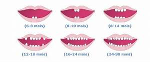 Quel Anti Inflammatoire Pour Une Douleur Dentaire : tout savoir sur la dent de lait notre guide complet ~ Medecine-chirurgie-esthetiques.com Avis de Voitures