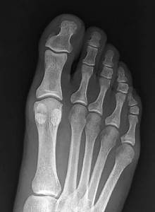 Normal Ap Radiograph Of The Right Foot  It Demonstrates