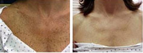 boise s 1 cosmetic sun damage treatments