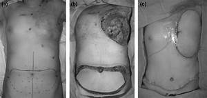 Chest Wall Recurrence Of Breast Cancer In A 53