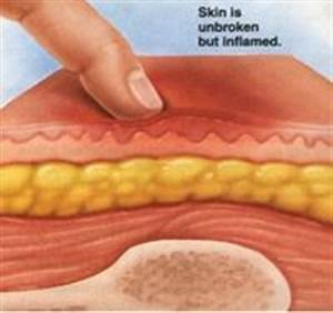 pressure ulcer stage 1 wwwpixsharkcom images With bed sores stage 1