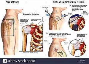 Shoulder Joint Surgery