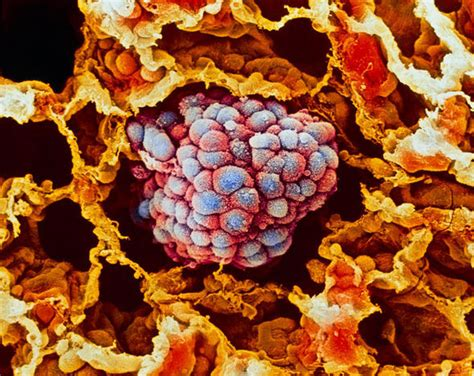 lung cancer cell tumor sem treatment gene non cells china pan virus disease therapy test human editing lungs paclitaxel blood