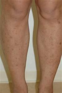 Сыпь на ногах при диабете лечение