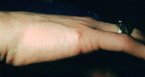 Medical Pictures Info – Cat Scratch Disease