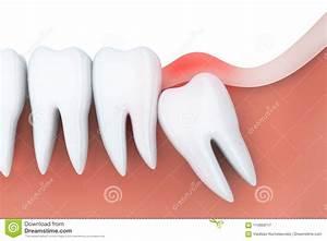 Symptome Dent De Sagesse : tandpijn in verstandskies stock illustratie illustratie bestaande uit illustratie 114959717 ~ Maxctalentgroup.com Avis de Voitures