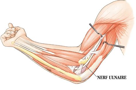 compression du nerf cubital au coude urgence