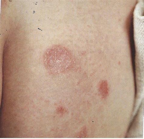 erupcoes cutaneas por todo  corpo causas  remedios naturais