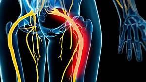 Sciatica Symptoms And Diagnosis