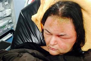 Waitress39 Allergic Reaction To Hair Dye Causes Horrific