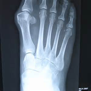 X-ray B Union Foot Surgery
