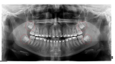 A basic wisdom tooth extraction procedure where the tooth has fully erupted without any complications can range anywhere from $100 to $300 per tooth. Wisdom Teeth College Station TX   Wisdom Teeth Removal   BVOMS