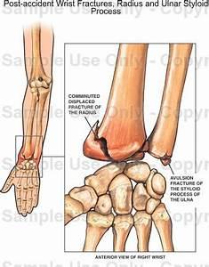 Ulnar Styloid Anatomy - Geoface #9309aae5578e
