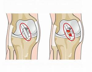 Medial Collateral Ligament  Mcl  Injuries