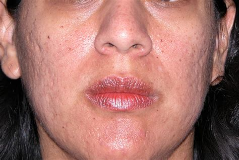 Medical Pictures Info Acne Scar