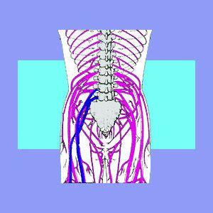 nerve root impingement