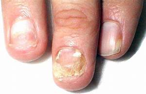 Хлорофиллипт от грибка на ногах