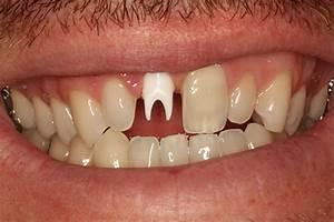 CASE GALLERY | Friendship Dental Laboratories, Inc.
