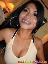 Asian girl with braces