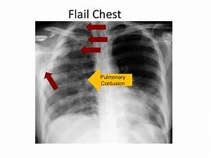 Flail Chest X Ray | www.pixshark.com - Images Galleries ...