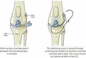 Cranial Cruciate Ligament Diagram : cranial cruciate ligament repair extracapsular repair ~ A.2002-acura-tl-radio.info Haus und Dekorationen