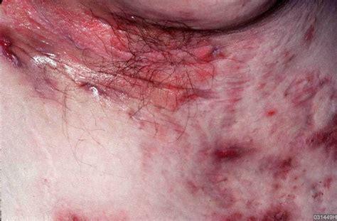 Acne inversa / Hidradenitis suppurativa - Huidarts.com